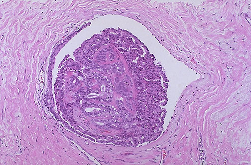 papilloma dcis