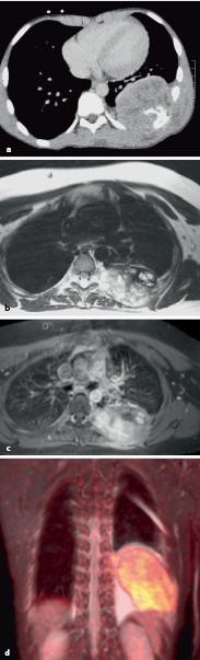 peritoneális rák szövettani altípusai diagnózis és kezelés pinworm