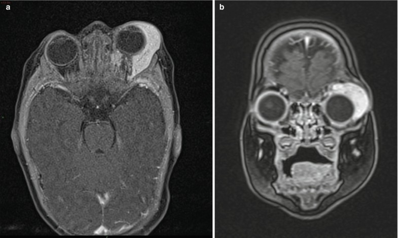 papilloma sinus c2)