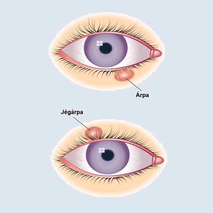 paraziták a szem tünetei és kezelése