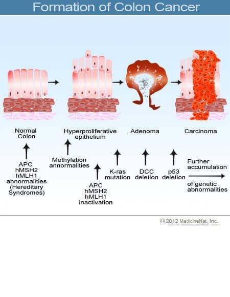 Gyomor-bél rák