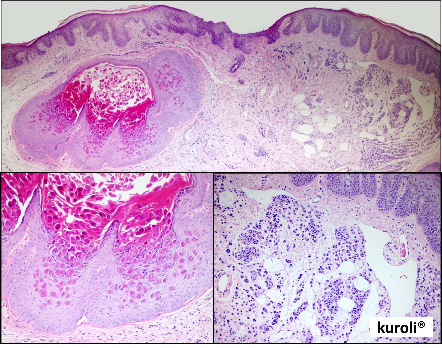szabálytalan papillomatosis acanthosis)