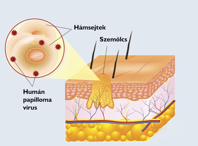 hogy a rák halálosabb schistosomiasis túlérzékenység