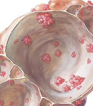 mikropapillomatosis vagy condyloma