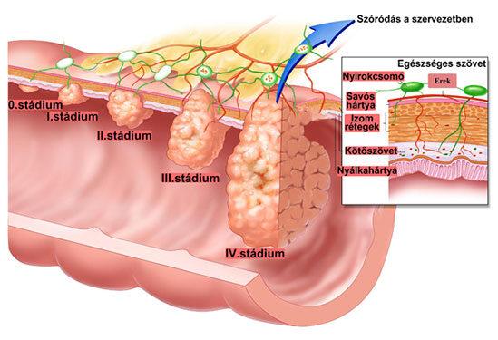 Vastagbélrák tünetei