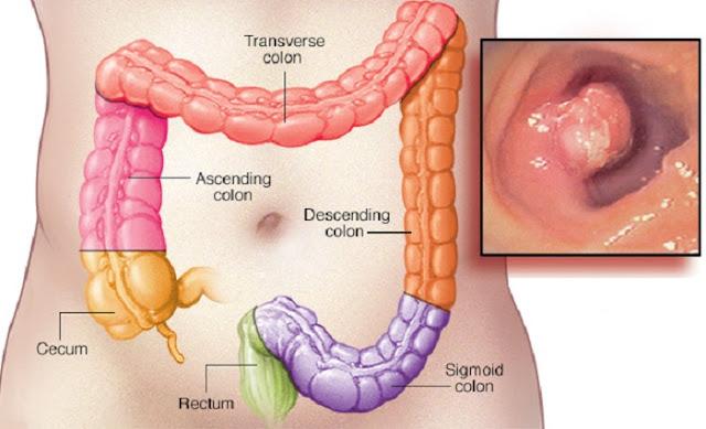 Daganatos betegségek - A vastagbélrák | maniactattoo.hu