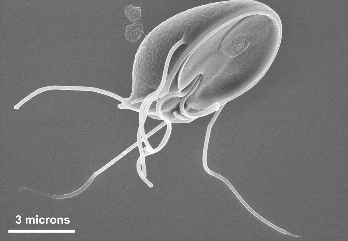 vázlatok a duodenum patológiájáról a giardiasisban)