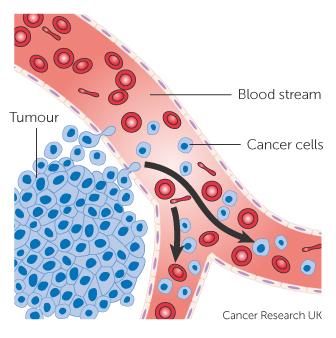 szinoviális rák szarkóma
