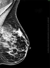 Mammográfia vagy emlőultrahang? - Budai Egészségközpont