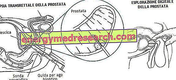 metasztatikus rák a nyirokcsomókba)