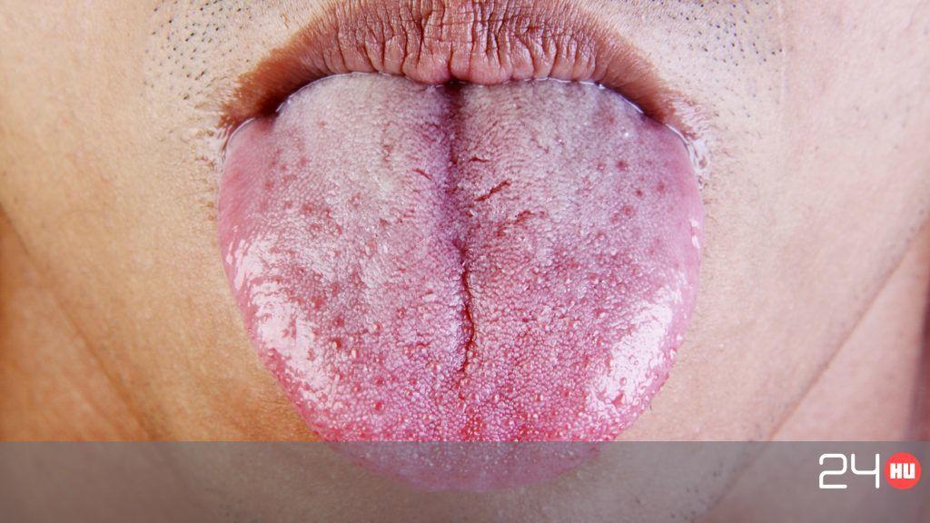 szemölcsök a férfiak ajkán gyomor metasztatikus rák