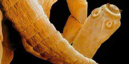 A galandférgesség tünetei és kezelése