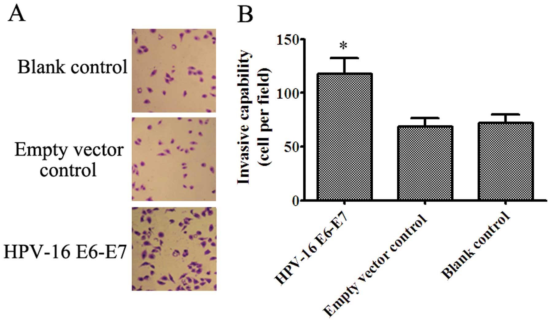 papilloma in vitro)