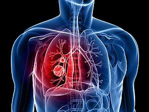 hpv tüdőrák kezelése)
