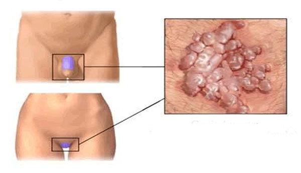 condyloma egy nő kezelésében