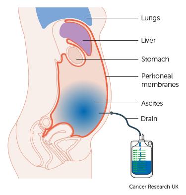 várható élettartam peritoneális rák)