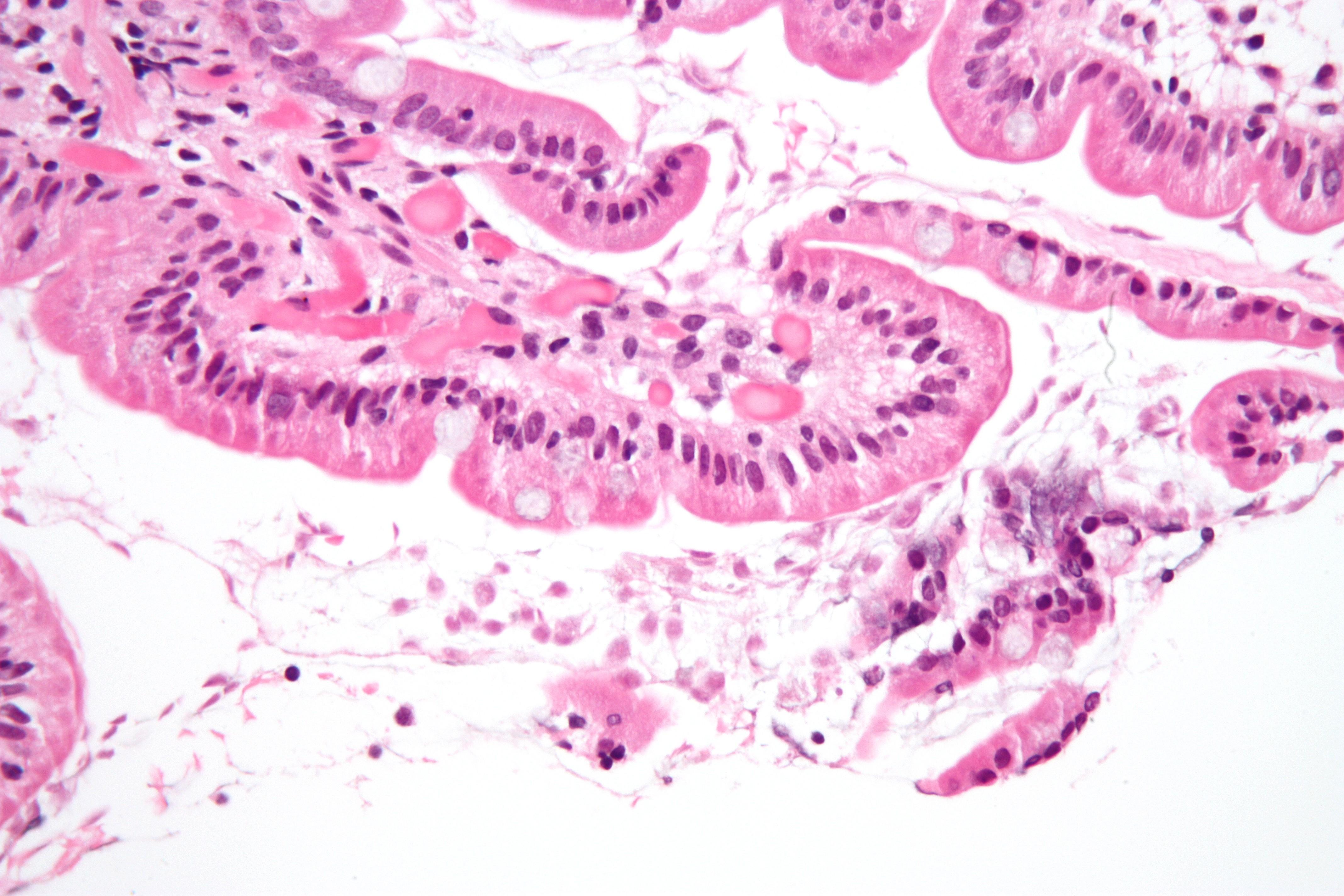 szövettani duodenum giardiasis