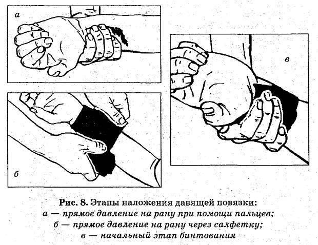 az ujján lévő seb nedves lesz)