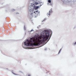 enterobius vermicularis a vizeletben
