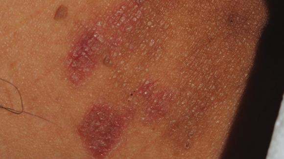 inguinalis dermatitis