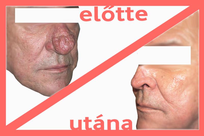 exofitikus orr papilloma a hasnyálmirigy méregtelenítéséért