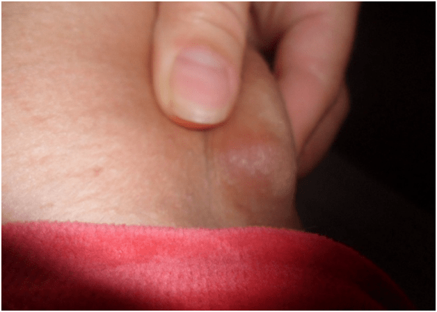 hónalj alatt megnő, mit kell tennie papilloma vírus nyaka