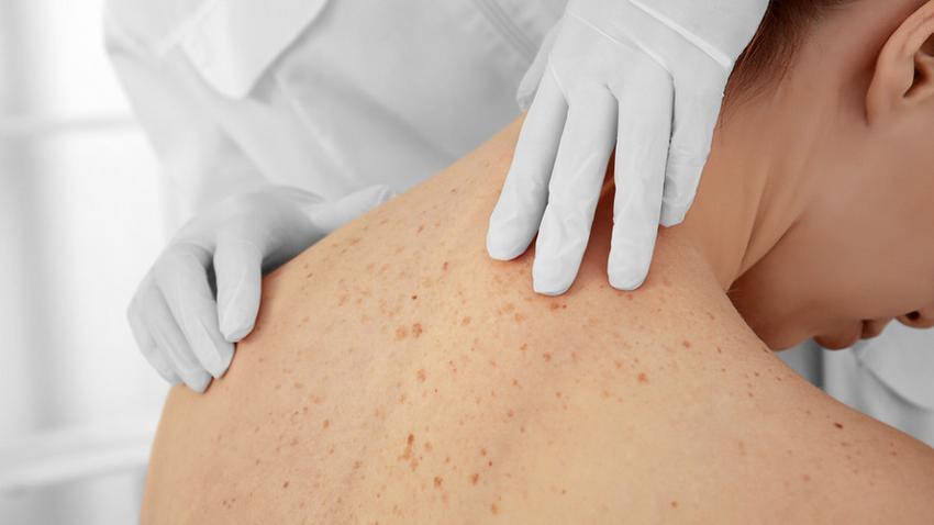bőrrák képződik szemölcsök és rák link