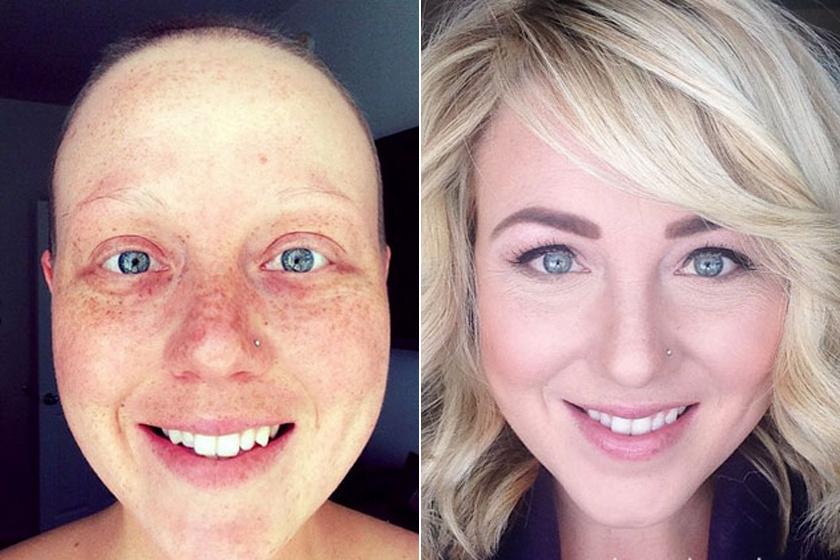Sztárok, akik megküzdöttek a rákkal és legyőzték – így élték meg a betegséget