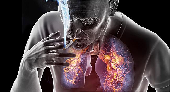 Hodgkin-kór tünetei és kezelése