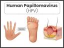 HPV és méhnyakrák