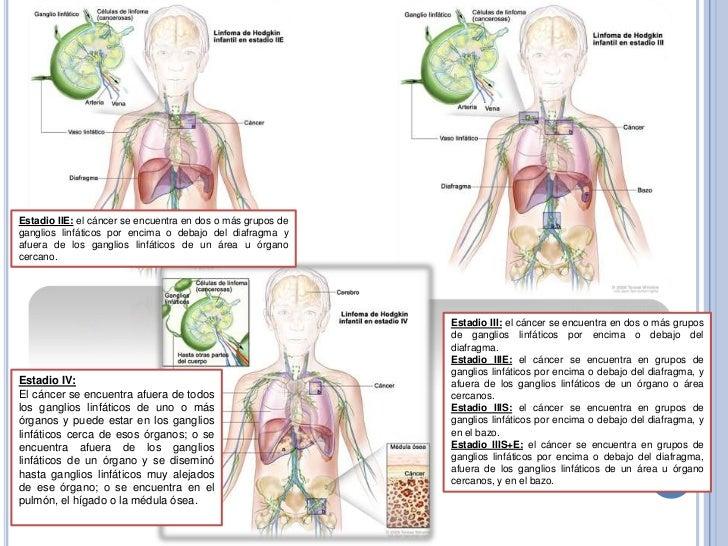 rákos hodgkinok hpv vakcina ppt