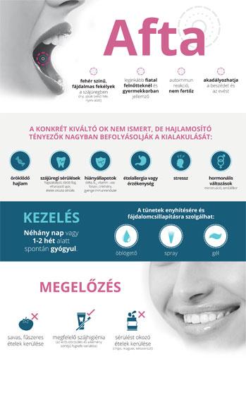 Az egészségtelen szájüreg növeli a HPV vírus előfordulásának kockázatát