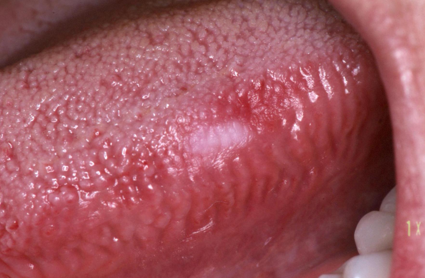 emberi papillomavírus nyelvrák)