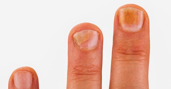 az ujjviszketés kezelése között)