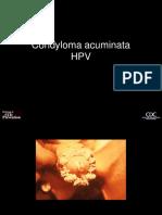 Neil R. Borley - Pierce A. Grace - Rövid sebészeti diagnosztika Conjunctival papilloma cimetidine