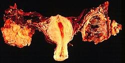 Örökletes emlő- és petefészekrák (BRCA1- és BRCA2-gének) vizsgálata - SYNLAB