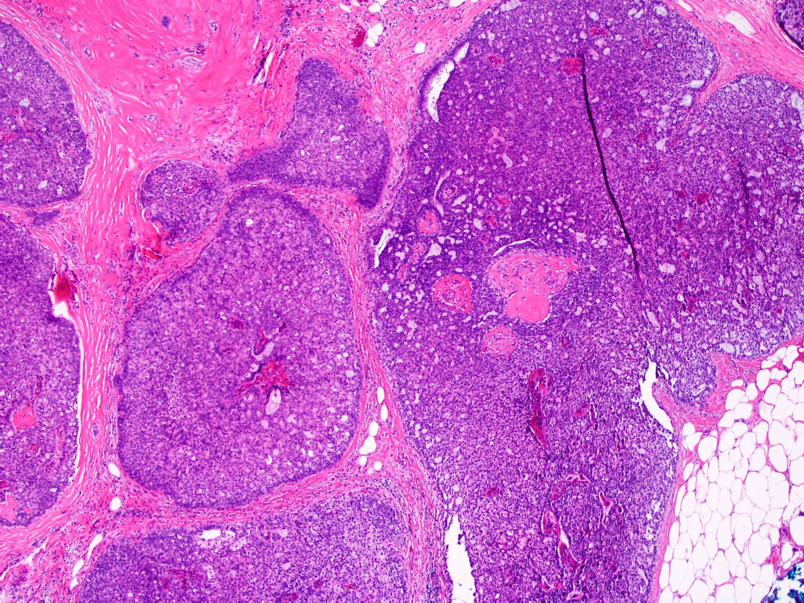 Az emlőmirigy intraduktális papilloma okai, az eltávolító művelet - Anglöma October