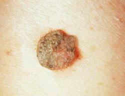 Hüvelyi condyloma tünetei