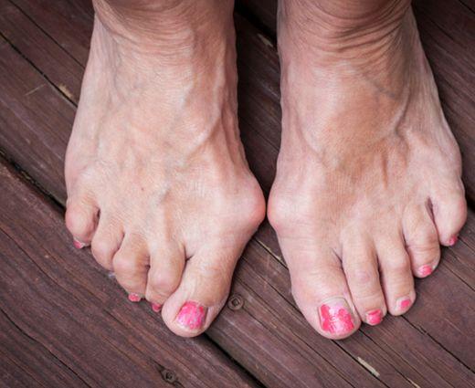 fekélyek a lábujjak oka között