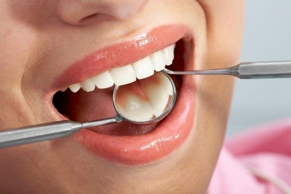 hpv nyelv a szájban