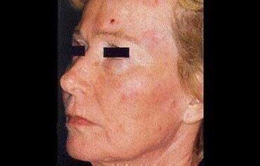 bőrrák az arcán)