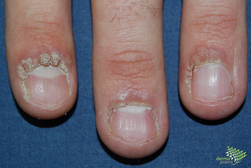 lábszemölcs körömlakk agresszív rák növekedési üteme