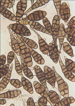 helminthosporium sativum