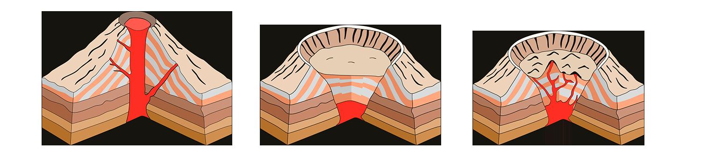condyloma nyaki erózió
