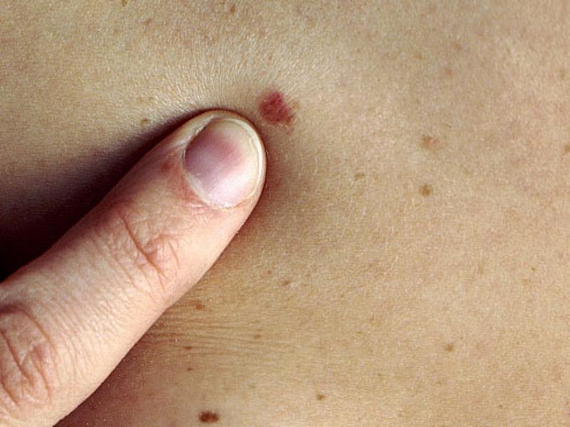 Bőrrák; melanoma
