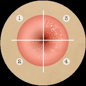 a cervicalis condyloma kolposzkópiáját mutatja
