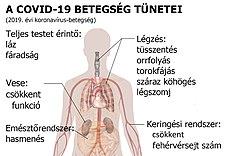 A galandférgesség tünetei és kezelése - Az emberi test parazita diagnosztizálása és kezelése