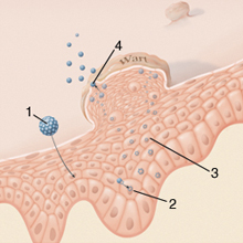 Condylomas a szájnyálkahártyában - Teratoma