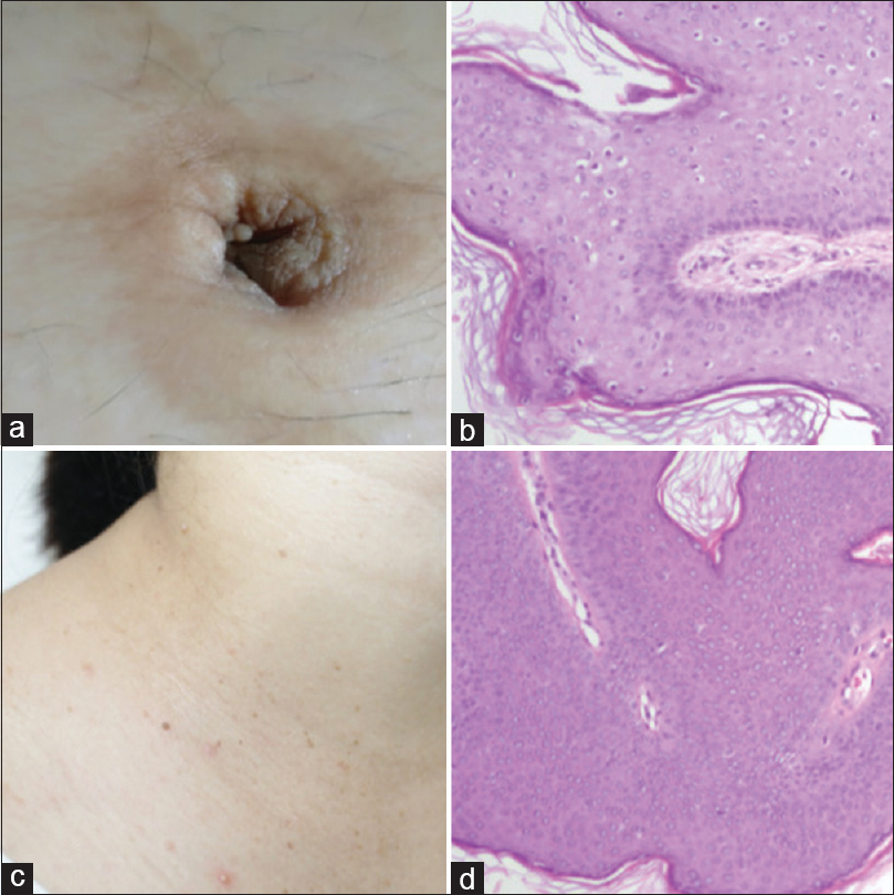 les plathelminthes ppt intraductalis papilloma atypia icd-vel 10