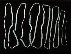 az emberi galandféreg tünetei és kezelése)